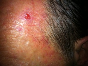 Oct. 26, 2011 - left frontal - open wound